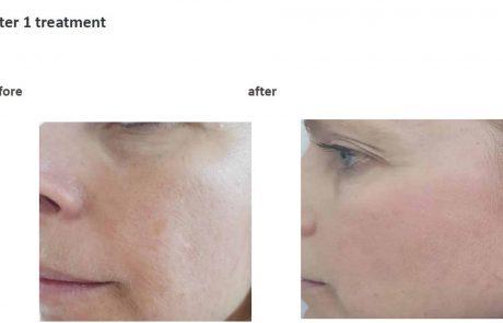 טיפול חדשני במחלת עור שכיחה:  הרוזציאה