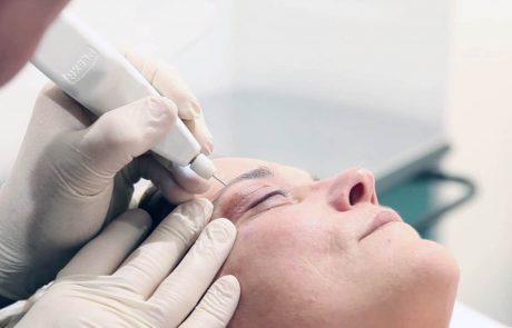 יש פתרון  לעפעפיים נפולים – ללא ניתוח!