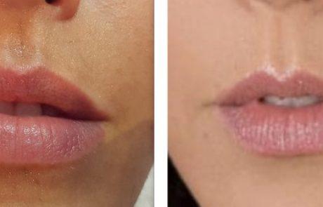 """חברת """"מד אופ אסתטיק"""" משדרגת את טיפול התפחת השפתיים"""