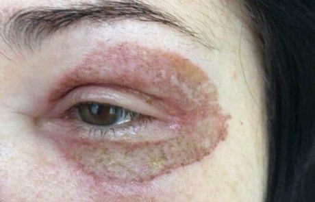 אזהרת סכנה: הרמת עפעפיים ללא ניתוח אצל קוסמטיקאיות