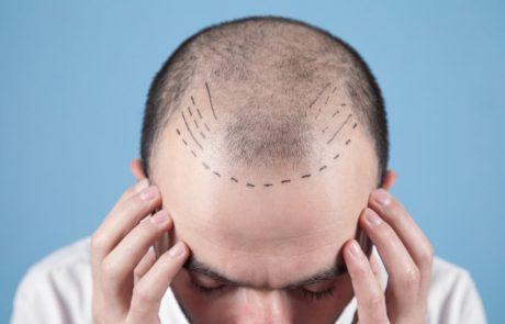 השתלת שיער – שיטת DHI: סקירת היתרונות